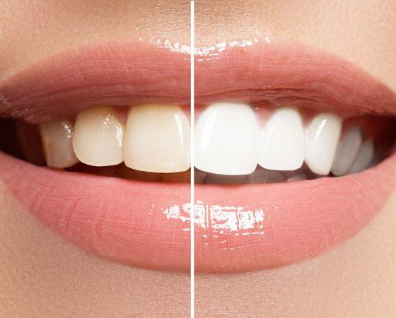 Odontología Estética / Diseño de Sonrisas