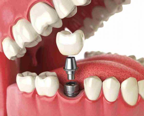 Preguntas frecuentes en implantes