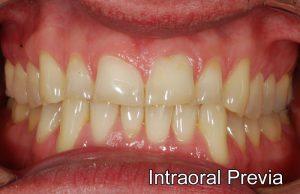 Rehabilitacion oral, las condes