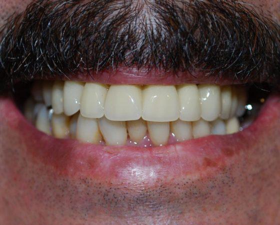 Implantes en un día. Caso total maxilar superior