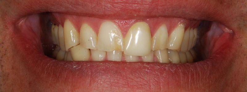 Rehabilitación completa en base a carillas, inscrustaciones y coronas