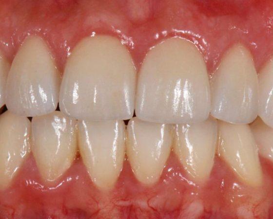 Diseño de Sonrisas, Cirugía de encías y carillas